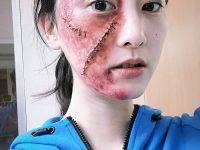 【関連】【悲報】松井玲奈さん、顔面に大怪我を負ってしまう・・・